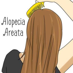 Geen haar op mijn hoofd: alopecia areata